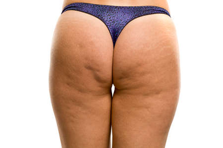 cellulite and strechmarks on woman's buttocks on white background