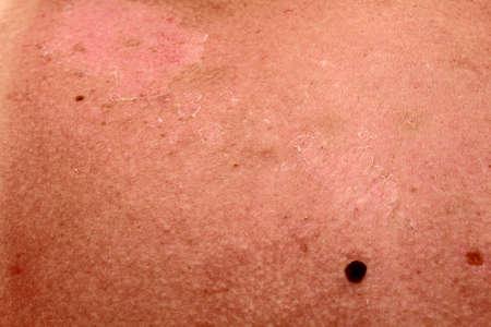 Peeling sunburned back skin. Heavy sunburn on the neck of woman. Stock fotó