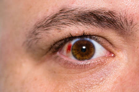 Eye injury, young man with burst blood vessel in eye, fatigue, problems with blood vessels