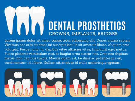 Dental prosthetics illustration. Dental implant, crown and bridge icons.