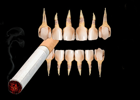 diseased: Very bad diseased teeth holding smoking cigarette isolated over black background.