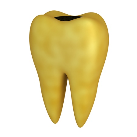 carious: Bad human Tooth (done in 3d, isolated)   Stock Photo