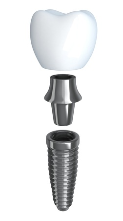 implant: Tooth implant disassembled  done in 3d, isolated  Stock Photo