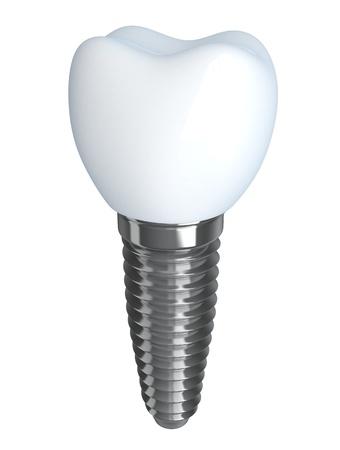 Implante dental hecho en gr�ficos 3D, aisladas Foto de archivo - 15474999