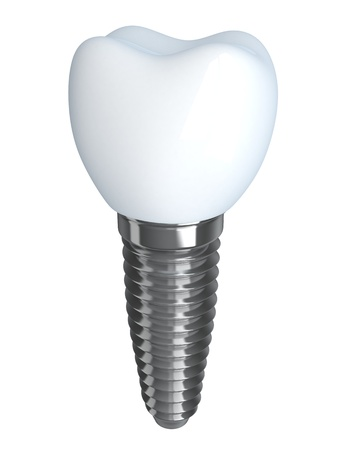 implant: Tooth implant  done in 3d graphics, isolated