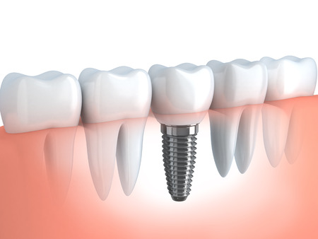 dentist: Tooth human implant (done in 3d graphics)  Stock Photo