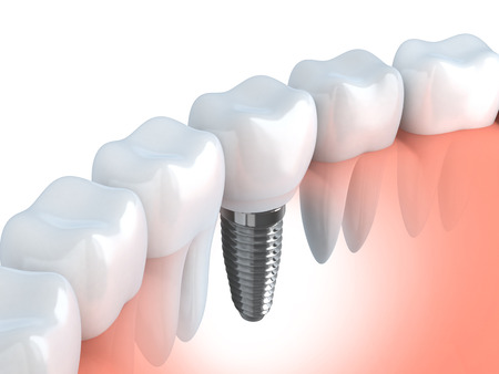 dental: Tooth human implant (done in 3d graphics)  Stock Photo