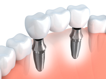 dental: Tooth human implant (done in 3d graphics)