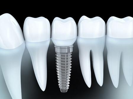 歯人間のインプラント (3 d グラフィックスで行います)