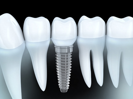 white teeth: Tooth human implant (done in 3d graphics)