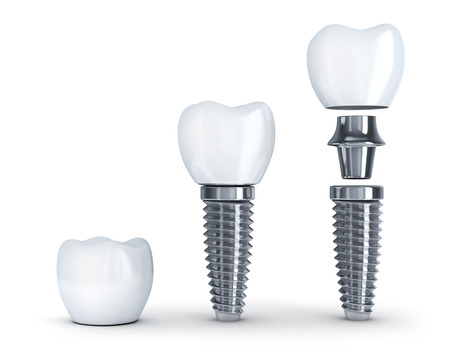 prothèse dentaire: Implant dentaire démonté (fait en 3d, isolé)