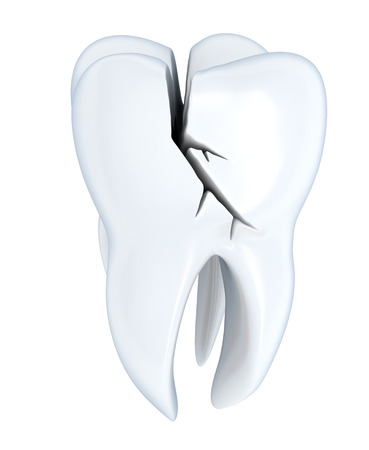 fractured: Broken tooth human Tooth (done in 3d, isolated)