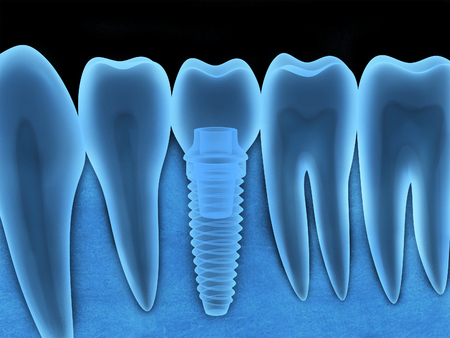 radiography: Tooth human implant x-ray (done in 3d, graphics) Stock Photo