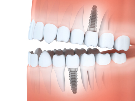 dental implants: Human jaw and tooth and dental implants (done in 3d rendering)