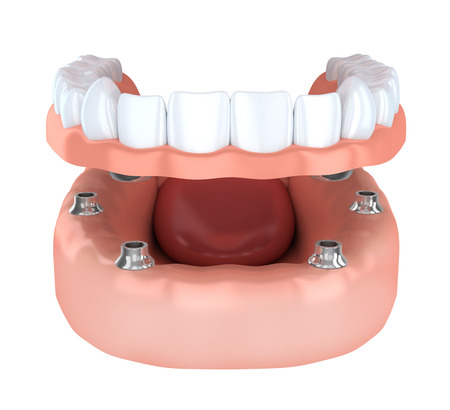 dent: Tooth humman implantation, denture (done in 3d rendering)
