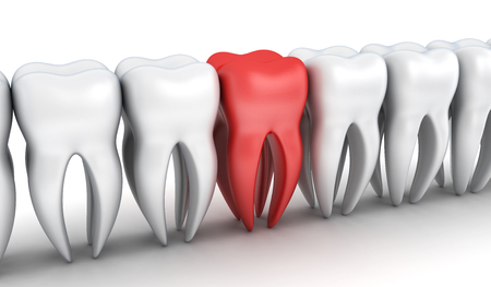 maxilla: Abstract row tooth and one red tooth (done in 3d rendering)