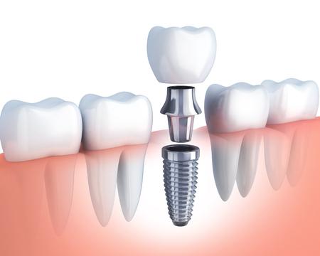 Fila de diente humano e implante dental. Ilustración 3d Foto de archivo - 70907202