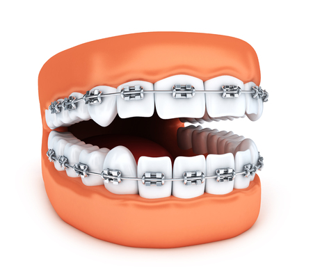 Human jaw tooth and brackets. 3d illustration