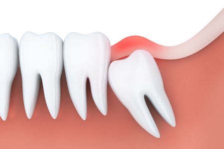 Toothache and inflammation in wisdom tooth. 3d illustration