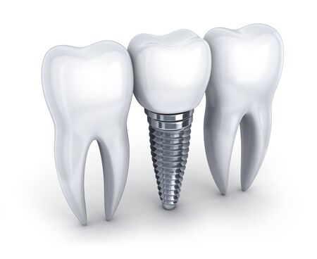 Dental implant and tooth on white background. 3d illustration. Banque d'images