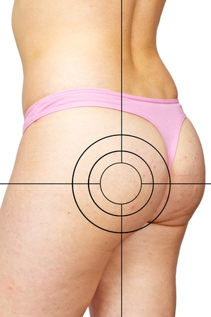 Skin staggered a cellulite and target Stock Photo - 10503642