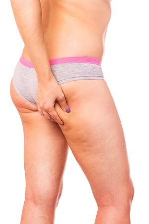 mujer celulitis: La piel se tambaleó un celulitis. Aislados en blanco Foto de archivo