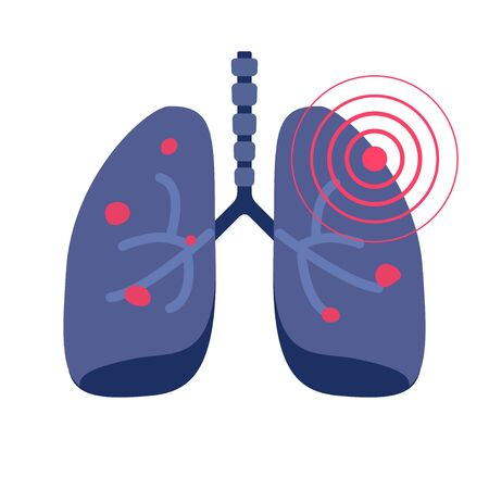 Lungs cancer illness or lung pneumonia and bronchitis tuberculosis pulmonary disease vector flat icon illustration, concept of medicine or medical respiration infection of organ sign isolated image