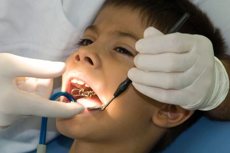 clavados: Joven muchacho tenga su cavidades fijado por un dentista  Foto de archivo