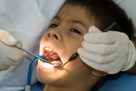 cavity braces: Young boy having his cavities fixed by a dentist