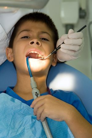 cavity braces: Dentist fixing the cavities of a young boy Stock Photo