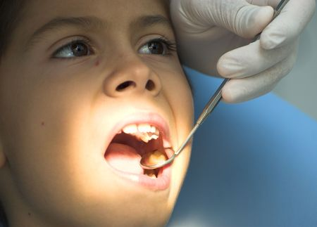 cavity braces: Young boy takes a dental attendance in the dentists office.
