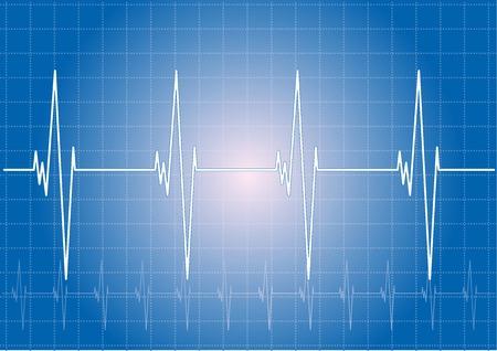 Heart rhythm on the blue display.  Stock Vector - 6168241