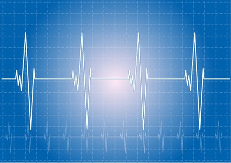 stress test: Heart rhythm on the blue display.