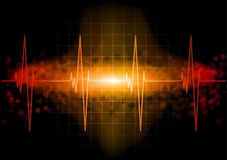 Herzschlag Monitor im Dunkeln