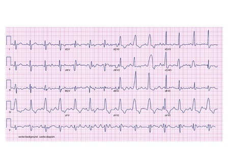 heart ecg trace: cardiogram on the pink grid Illustration