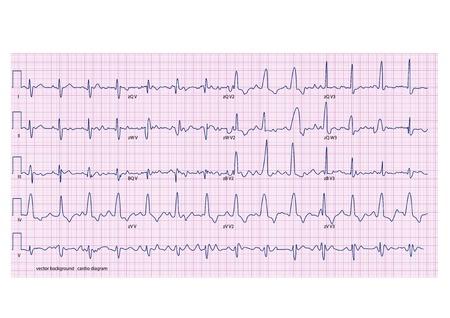 EKG auf dem rosa Gitter Standard-Bild - 20885706
