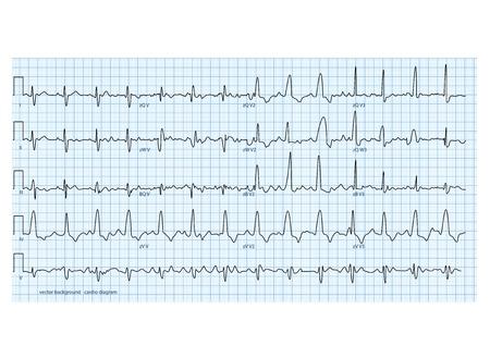 electrocardiograma: ilustración vectorial parece diagrama cardio reales