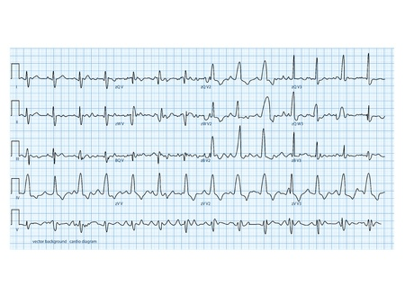 ekg: vector illustration looks like real cardio diagram Illustration