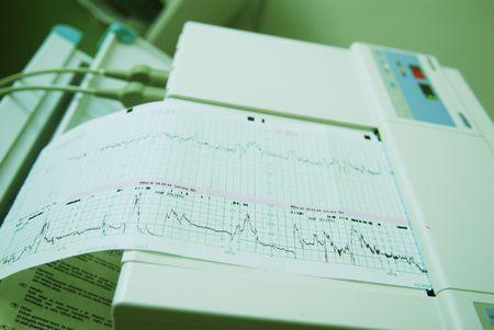 metering: A device metering heart pulsation