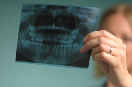 Arzt mit Röntgen der Zahnprothese