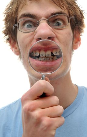 crooked: A young adult holds a magnifying glass up to his crooked teeth with braces on.