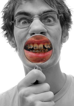 A young adult holds a magnifying glass up to his crooked teeth with braces on.
