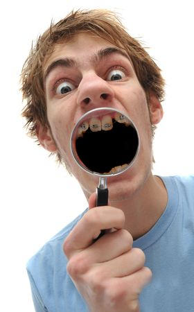 squawk: Young adult man holding magnifying glass to mouth, he has braces and his mouth is black inside. Stock Photo