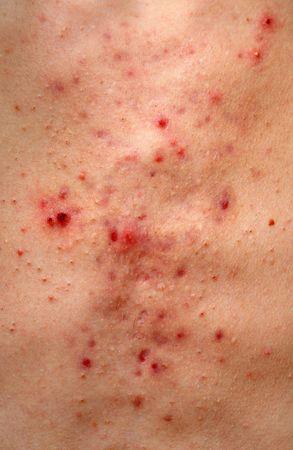 jeuken: Het patroon van een slechte acne onbezonnen op een witte mannelijke borst closeup.