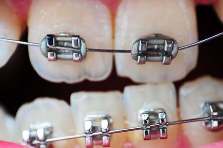 This image is a closeup of crooked unaligned teeth with braces on them. photo