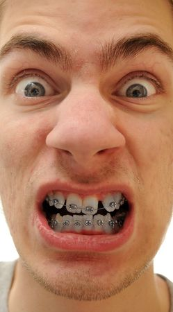 Young white causcasian man shows off his new braces on his pure white teeth. photo