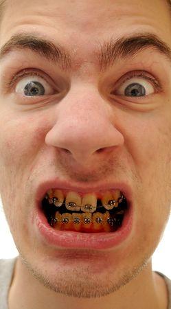 Causcasian blanco joven hombre muestra sus nuevas llaves en su mal cuidada para dientes amarillos. Foto de archivo - 6429379