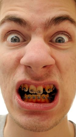 Young white causcasian man shows off his new braces on his poorly cared for yellow teeth.