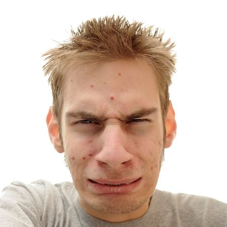 what: Teenage looks embarrassed and confused about the pimples that are showing up all over his face.