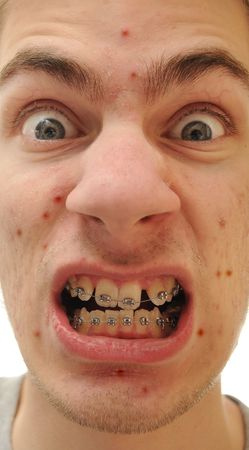 Young white causcasian man shows off his new braces. He has an acne pimples problem and his teeth are crooked